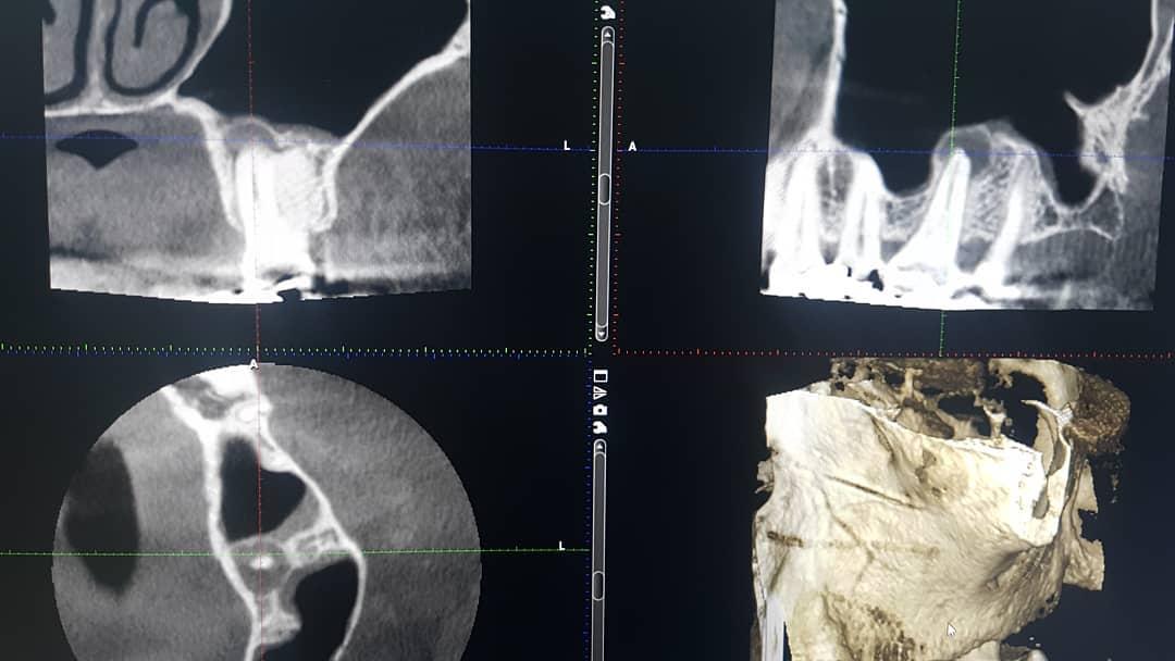 Kartiokeilaröntgenlaite